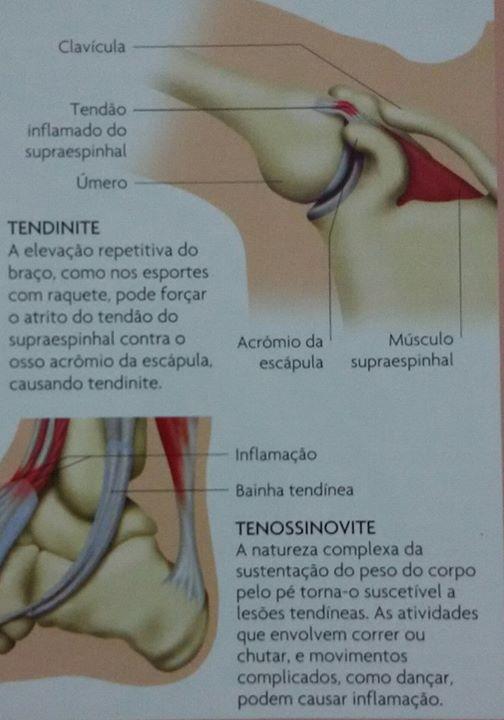 Tendinite-e-tenossinovite